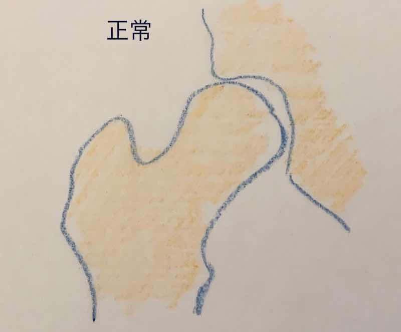 正常な大腿骨頭のイラストです。大腿骨と寛骨で作られた股関節の部分をイラストにしています。